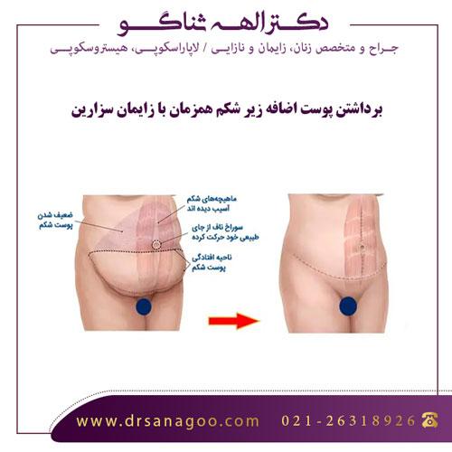 برداشتن پوست اضافه زیر شکم همزمان با زایمان سزارین
