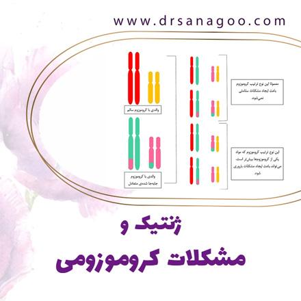 مشکلات کروموزومی